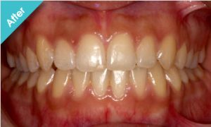 after_quick_straight_teeth_3