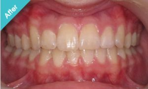 after_quick_straight_teeth_5