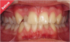 before-Quick_straight_teeth_1