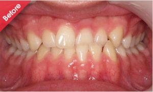 before_quick_straight_teeth_21