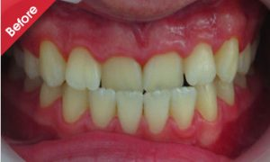 before_quick_straight_teeth_6