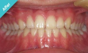 after_quick_straight_teeth_2