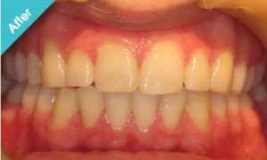 after_quick_straight_teeth_4