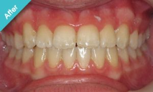 after_quick_straight_teeth_6
