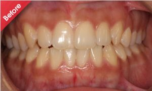 before_quick_straight_teeth_3