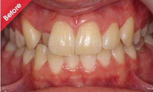 before_quick_straight_teeth_5
