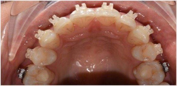 Teeth-Journey-3