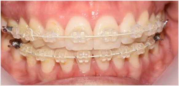 Teeth-Journey-4